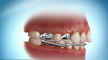 Xbow image, Miller Orthodontics, The Crossbow™ Appliance is used to correct overbites in children and teens. The appliance prevents the lower jaw from moving backward, opening and closing movements still occur easily.