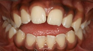 Malocclusion and Tongue Posture Induced Snoring-They ARE related!, Miller Orthodontics Blog
