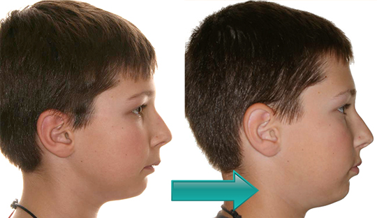 Miller Orthodontics - Alec before and after Crossbow and braces