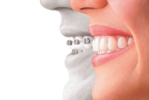 Accelerated Teen Invisalign™ And Clear Braces To Straighten Teeth On Teens And Adults, aligner v braces, Miller Orthodontics Blog