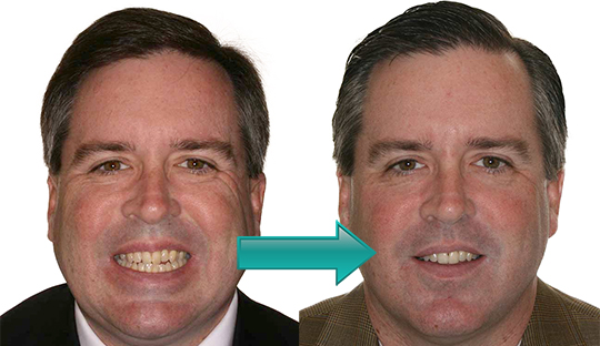 Miller Orthodontics - Bob before and after Invisalign