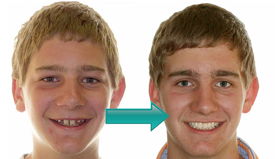 Miller Orthodontics - Bobby before and after teeth replacement