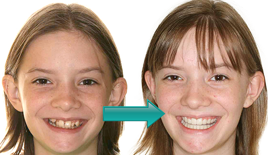 Miller Orthodontics - Jacquline before and after Crossbow and Braces