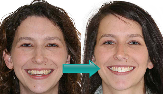 Miller Orthodontics - Valerie before and after Tads and Braces